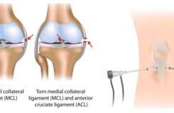 Post-Surgical Guidelines After A Knee Arthroscopy