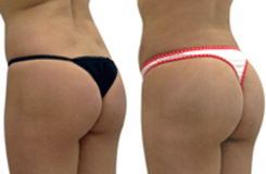Tips to Care For Your Butt After A Brazilian Butt Lift