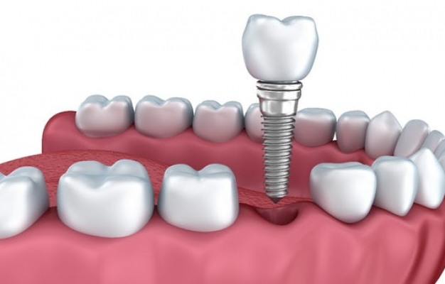 dental-implant-miami