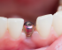 Affordable dental implants Miami