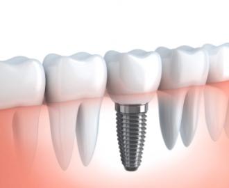 Best dental implants Miami