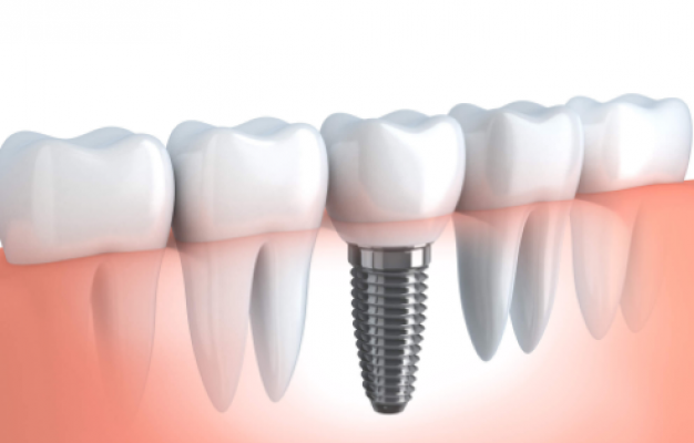 Best dental implants Miami