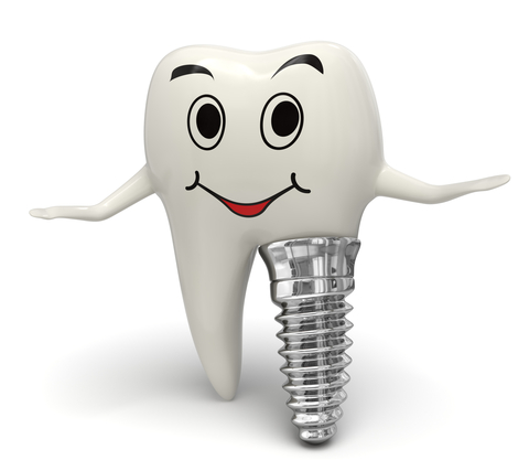 9 Benefits Of Dental Implants
