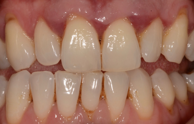 6 Things Which You Should Know About Gum Disease And Gingivitis