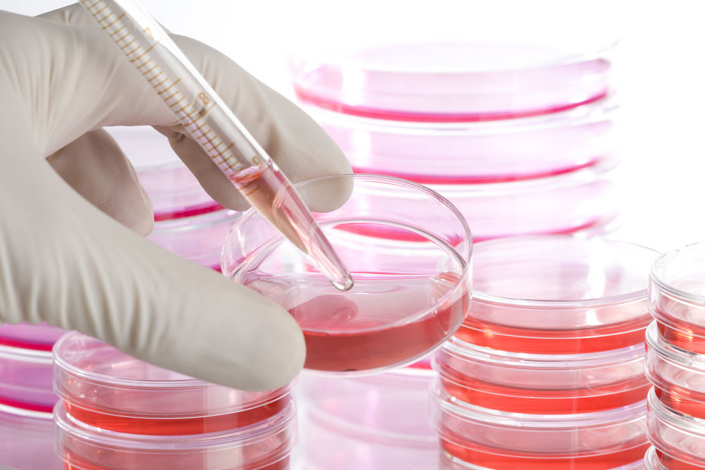 A Guide About Stem Cell Therapy