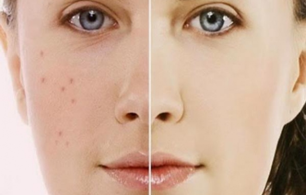 How To Get Rid Of Acne Scars When Nothing Works