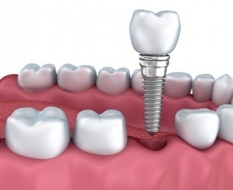 tooth implant Delray Beach